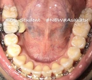歯科矯正23ヶ月 下
