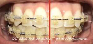 歯科矯正19ヶ月 真ん中