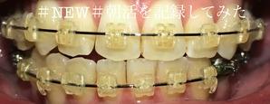 歯科矯正9ヶ月目