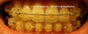 大人の歯科矯正35ヶ月目 ブラケット29ヶ月目