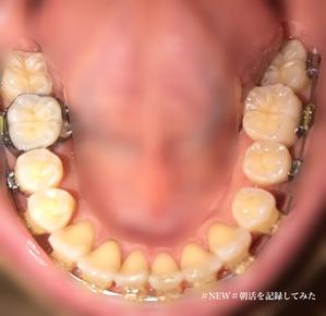 歯科矯正12ヶ月目 下