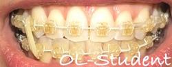 歯科矯正24ヶ月 線