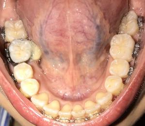 歯科矯正17ヶ月目 下