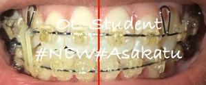 歯科矯正22ヶ月 線あり