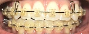 歯科矯正21ヶ月