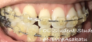 歯科矯正19ヶ月 横隙間