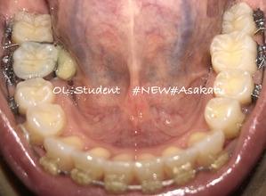 大人の歯科矯正36ヶ月目 ブラケット30ヶ月目 下