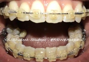 歯科矯正19ヶ月 開き口