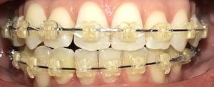 歯科矯正14ヶ月目