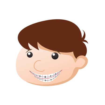 braces-2545700_1280