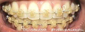大人の歯科矯正33ヶ月目 ブラケット27ヶ月目