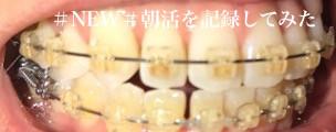 歯科矯正16ヶ月目 隙間