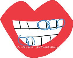 歯科矯正 歯科医のゴム