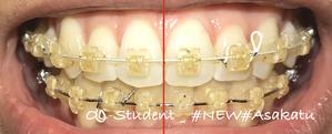 大人の歯科矯正33ヶ月目 ブラケット27ヶ月目 線
