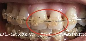 歯科矯正17ヶ月目隙間埋め
