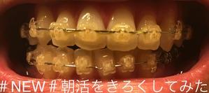 歯科矯正5ヶ月2