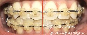 歯科矯正20ヶ月 真ん中線