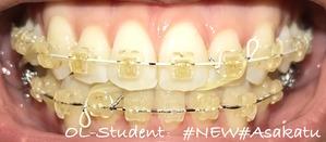大人の歯科矯正32ヶ月目 ブラケット26ヶ月目