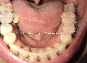 大人の歯科矯正34ヶ月目 ブラケット28ヶ月目 下