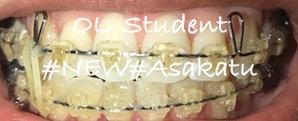 歯科矯正22ヶ月