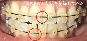 歯科矯正11ヶ月目 口のズレ
