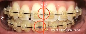 歯科矯正12ヶ月目