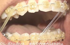 歯科矯正25ヶ月  横 ゴム 口オープン