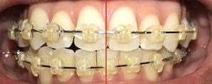 歯科矯正13ヶ月目