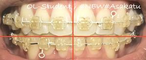 歯科矯正25ヶ月  正面 線