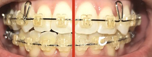 歯科矯正21ヶ月 線