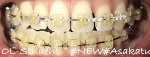 歯科矯正17ヶ月目