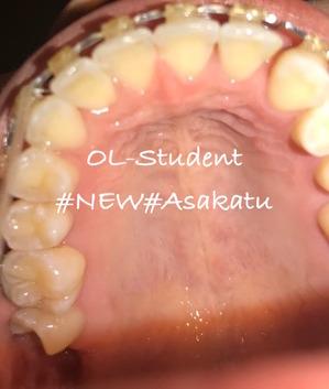 歯科矯正22ヶ月 上