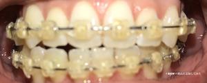 歯科矯正15ヶ月目