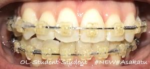 歯科矯正19ヶ月