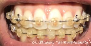 大人の歯科矯正36ヶ月目 ブラケット30ヶ月目
