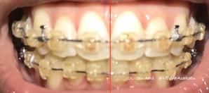 大人の歯科矯正36ヶ月目 ブラケット30ヶ月目 線