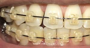 歯科矯正13ヶ月目 migi