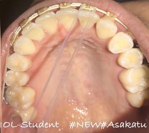 歯科矯正25ヶ月  うえ