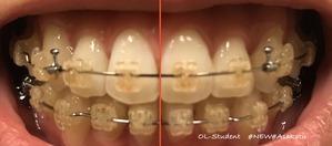 大人の歯科矯正34ヶ月目 ブラケット28ヶ月目 線