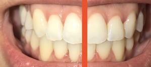 大人の歯科矯正37ヶ月目 ブラケット31月目 線