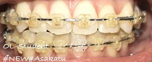 歯科矯正20ヶ月