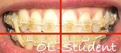 歯科矯正24ヶ月 線 線