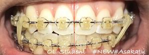 歯科矯正23ヶ月 線