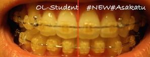 大人の歯科矯正35ヶ月目 ブラケット29ヶ月目 線