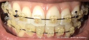 大人の歯科矯正34ヶ月目 ブラケット28ヶ月目