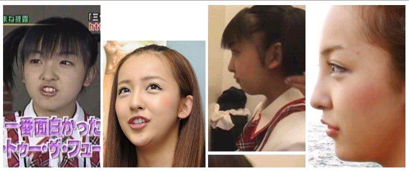 https://livedoor.blogimg.jp/omaeranews-idol/imgs/a/1/a1c0767a.jpg