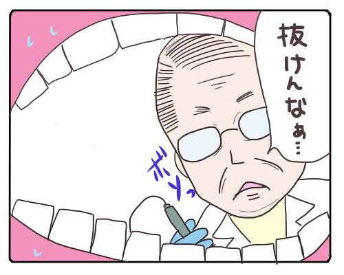 親知らず6