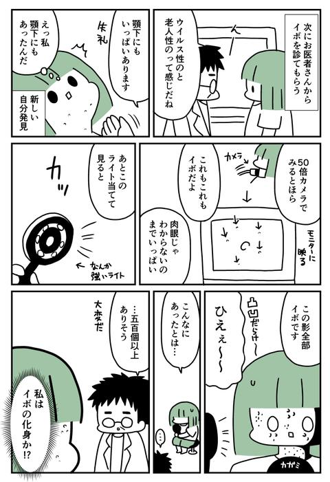イボ2-2