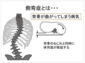 脊椎側彎症syamu