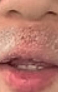 syamu唇